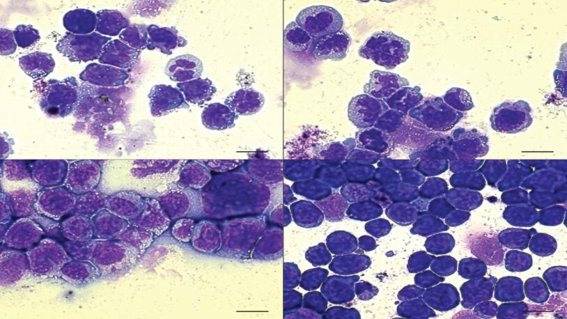 image of defective blood cells