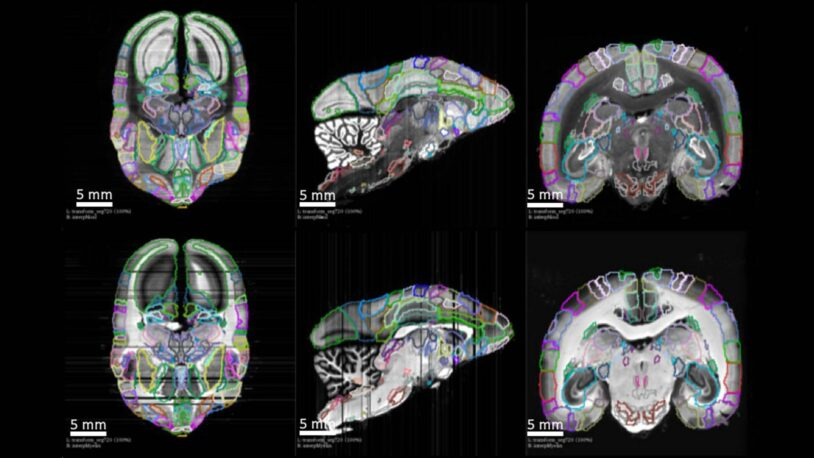 image of brain mapped neural connections