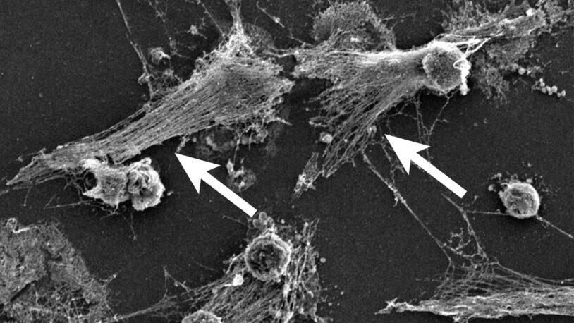 scanning electron microscopy image of neutrophils forming NETs