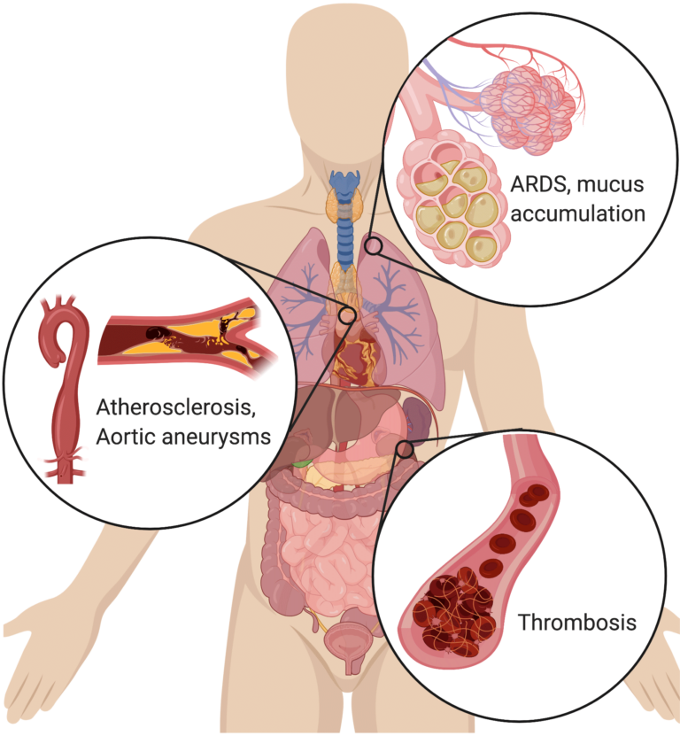 illustration of human body with callouts indicating several severe pathologies
