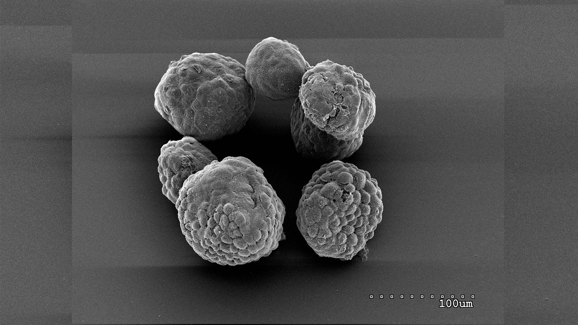 image of pancreatic tumor organoids in mouse