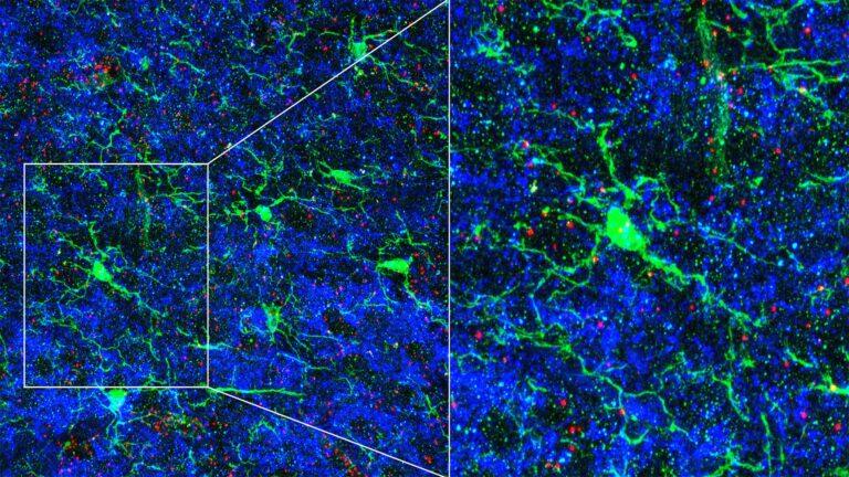 image of microglia cells in brain