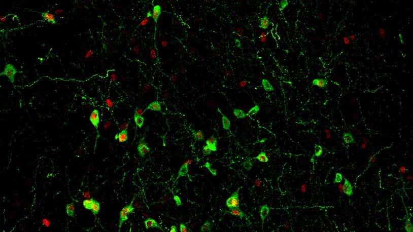 an image of a section of mouse brain stained to show the insomnia