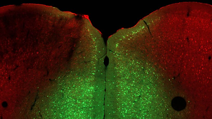 image of a slice of mouse brain