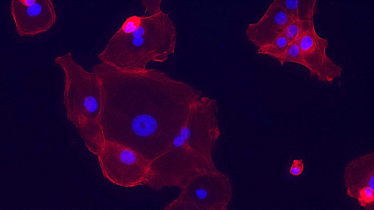 Image of epithelial cell lung tumors