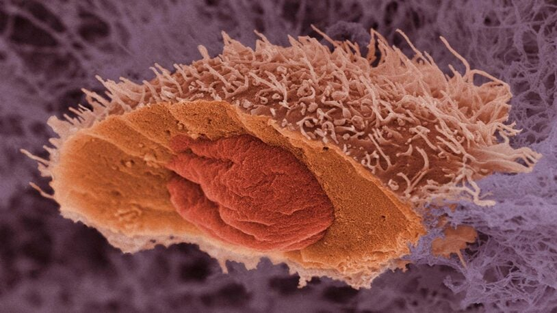 image of a skin cancer cell