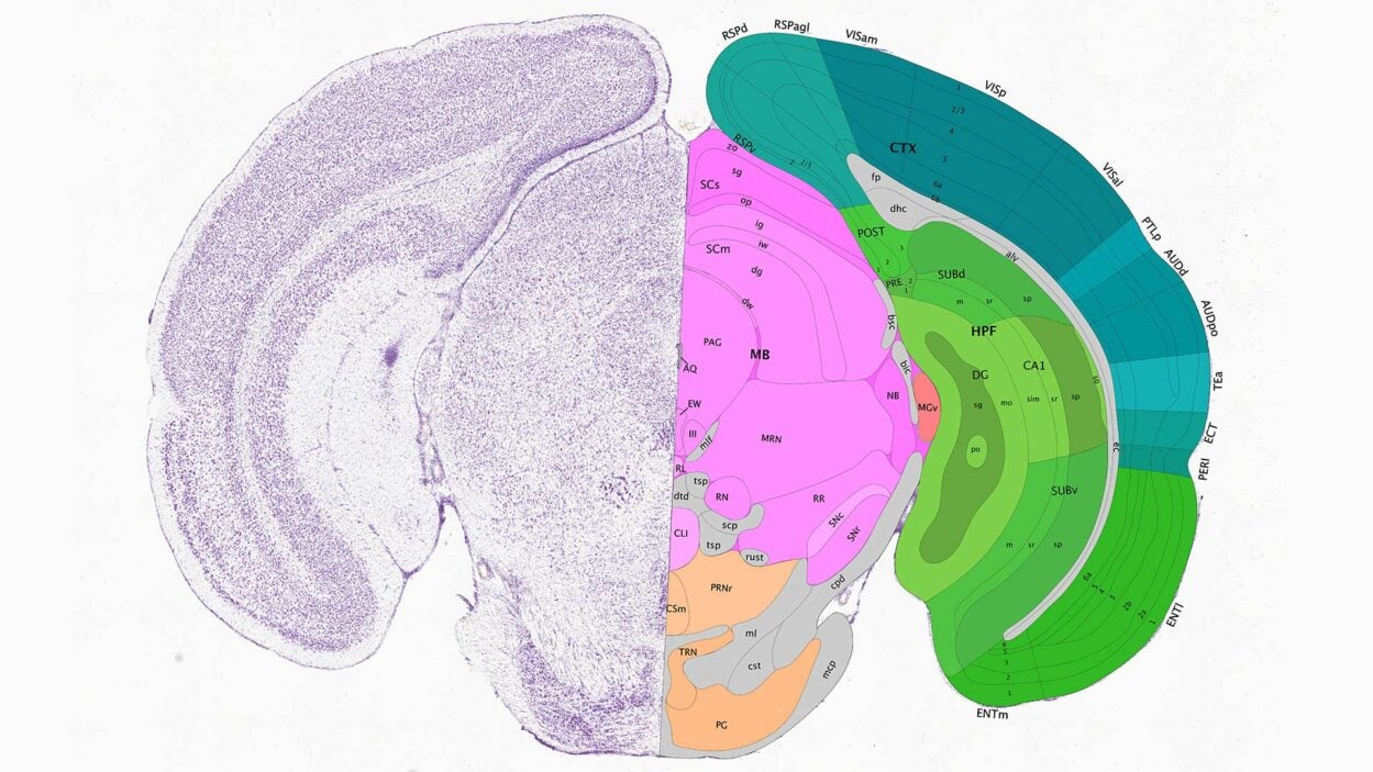 illustration of a slice of a mouse brain