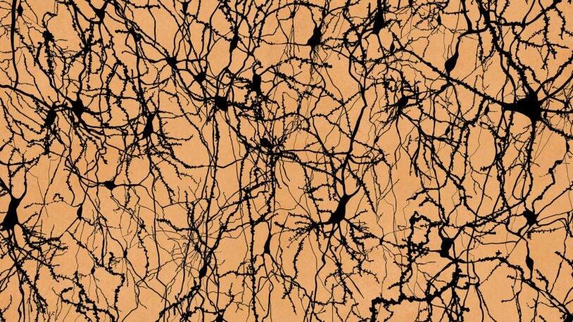 image of human brain neurons